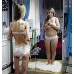 Anorexia-nervosa-300x300-2