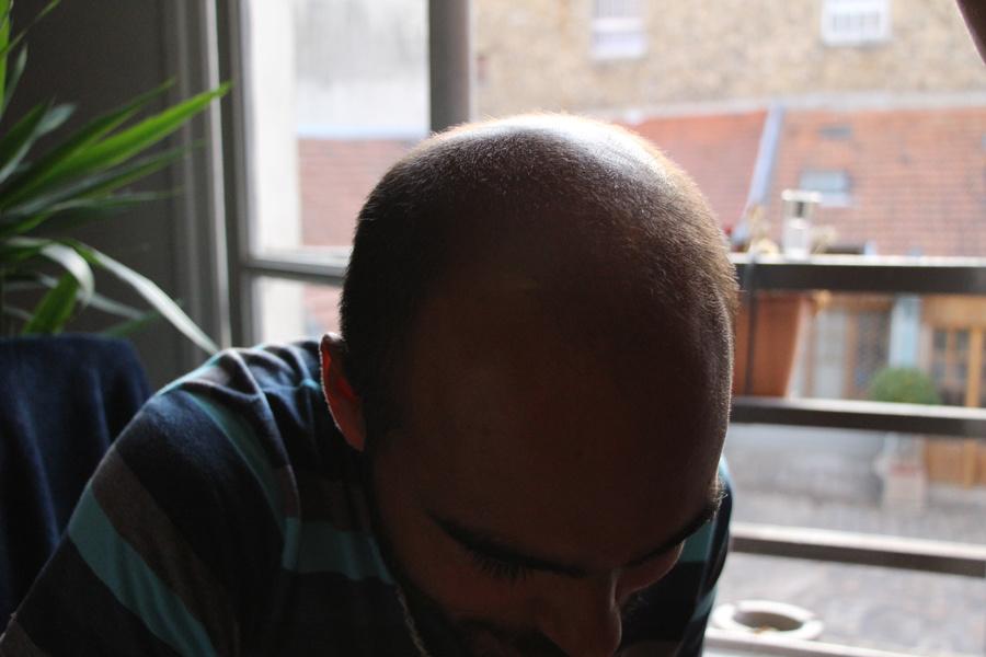 Chute de cheveux : enfin la solution !